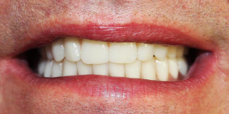 Dental Implant Patient 3 After Treatment