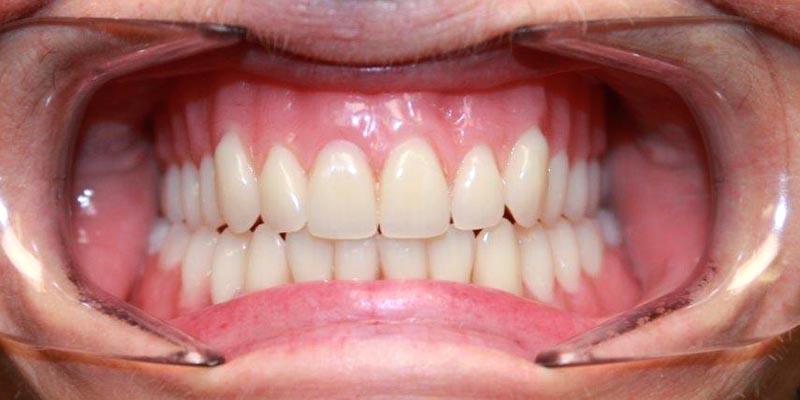 Dental Implant Patient 4 After Treatment