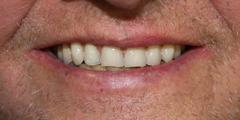 Dental Implant Patient 11 After Treatment