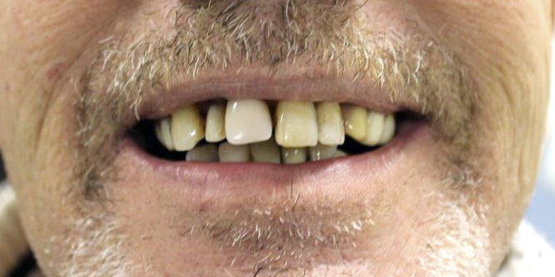 Dental Implant Patient 12 Before Treatment