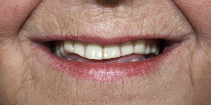 Dental Implant Patient 13 Before Treatment