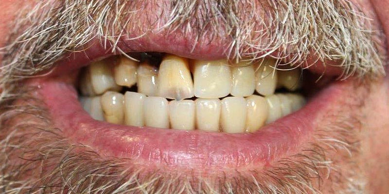Dental Implant Patient 14 After Treatment