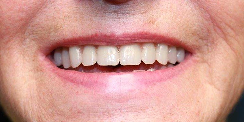 Dental Implant Patient 16 After Treatment
