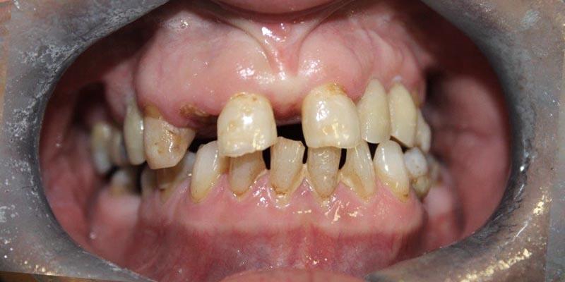 Dental Implant Patient 18 Before Treatment