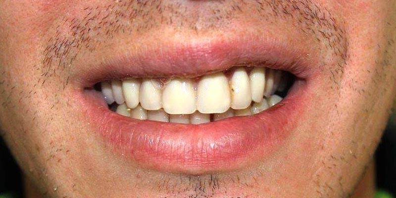 Dental Implant Patient 19 After Treatment