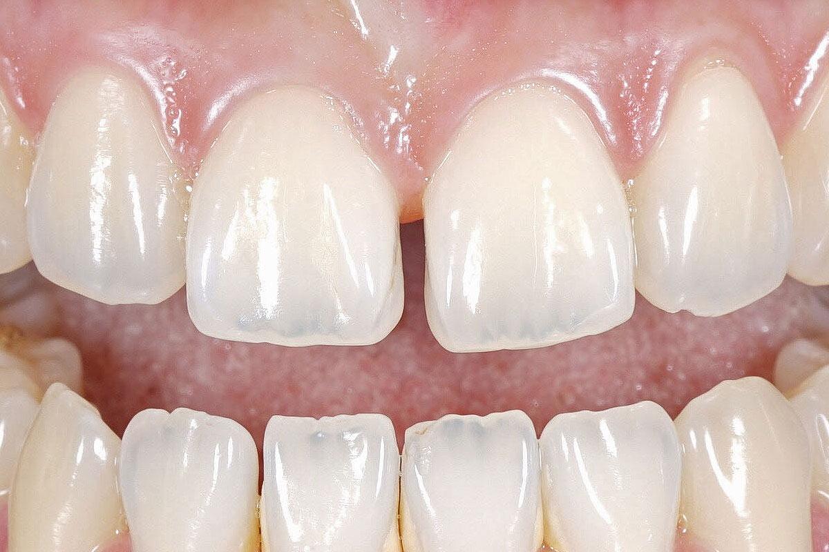 Composite Bonding for Gaps in Teeth, Stoke-on-Trent