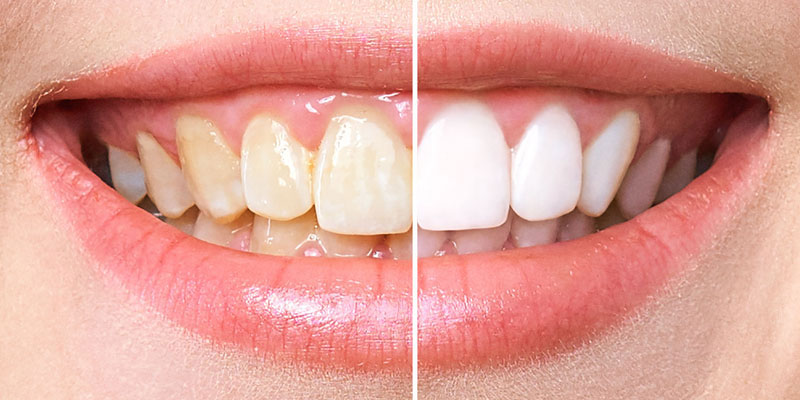 Cosmetic Dentistry, Stoke-on-Trent