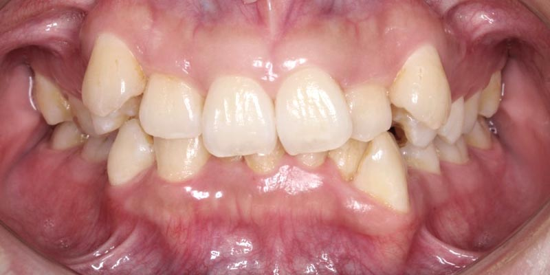 Invisalign® Patient 1 Before Treatment