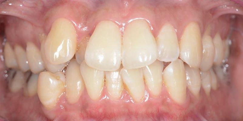 Invisalign® Patient 4 Before Treatment